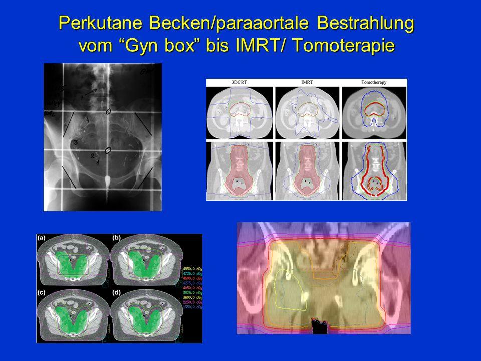 Perkutane Becken/paraaortale Bestrahlung vom Gyn box bis IMRT/ Tomoterapie