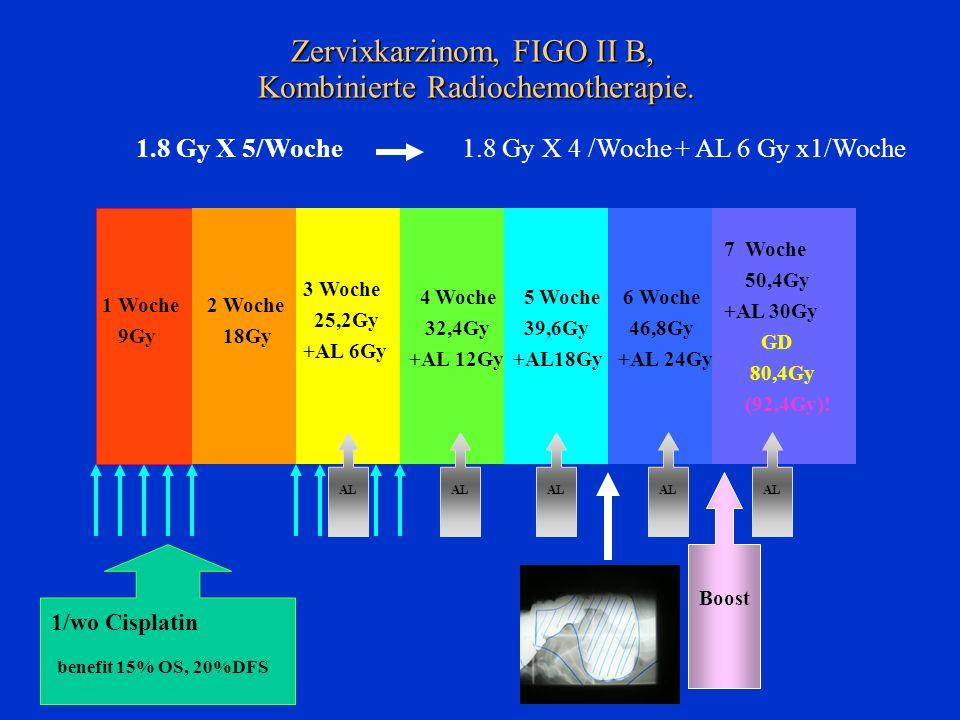 Zervixkarzinom, FIGO II B, Kombinierte Radiochemotherapie. 4 Woche 32,4Gy +AL 12Gy 2 Woche 18Gy 3 Woche 25,2Gy +AL 6Gy 1 Woche 9Gy 6 Woche 46,8Gy +AL