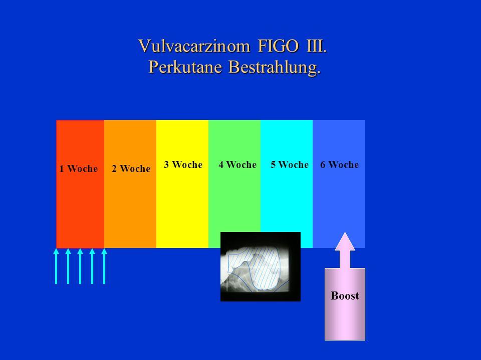 Vulvacarzinom FIGO III. Perkutane Bestrahlung. 4 Woche 2 Woche 3 Woche 1 Woche 6 Woche Boost 5 Woche