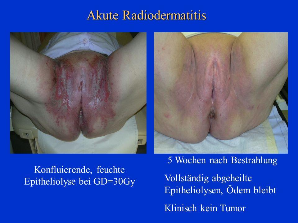 Akute Radiodermatitis 5 Wochen nach Bestrahlung Vollständig abgeheilte Epitheliolysen, Ödem bleibt Klinisch kein Tumor Konfluierende, feuchte Epitheli