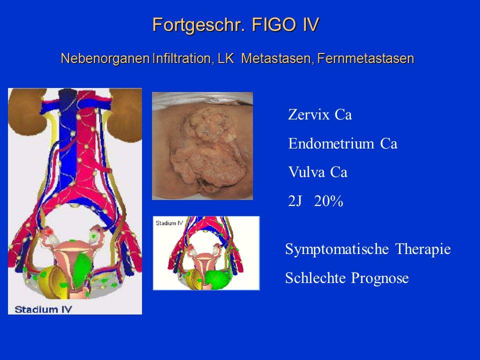 Fortgeschr. FIGO IV Nebenorganen Infiltration, LK Metastasen, Fernmetastasen Symptomatische Therapie Schlechte Prognose Zervix Ca Endometrium Ca Vulva