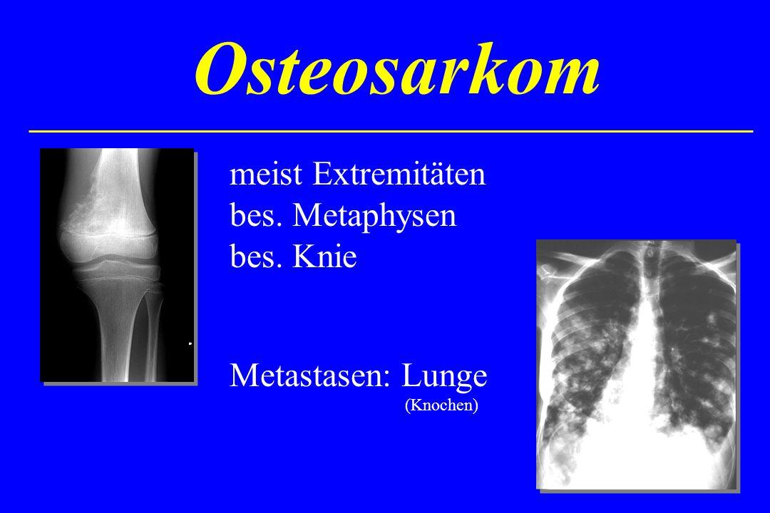 Osteosarkom meist Extremitäten bes. Metaphysen bes. Knie Metastasen: Lunge (Knochen)