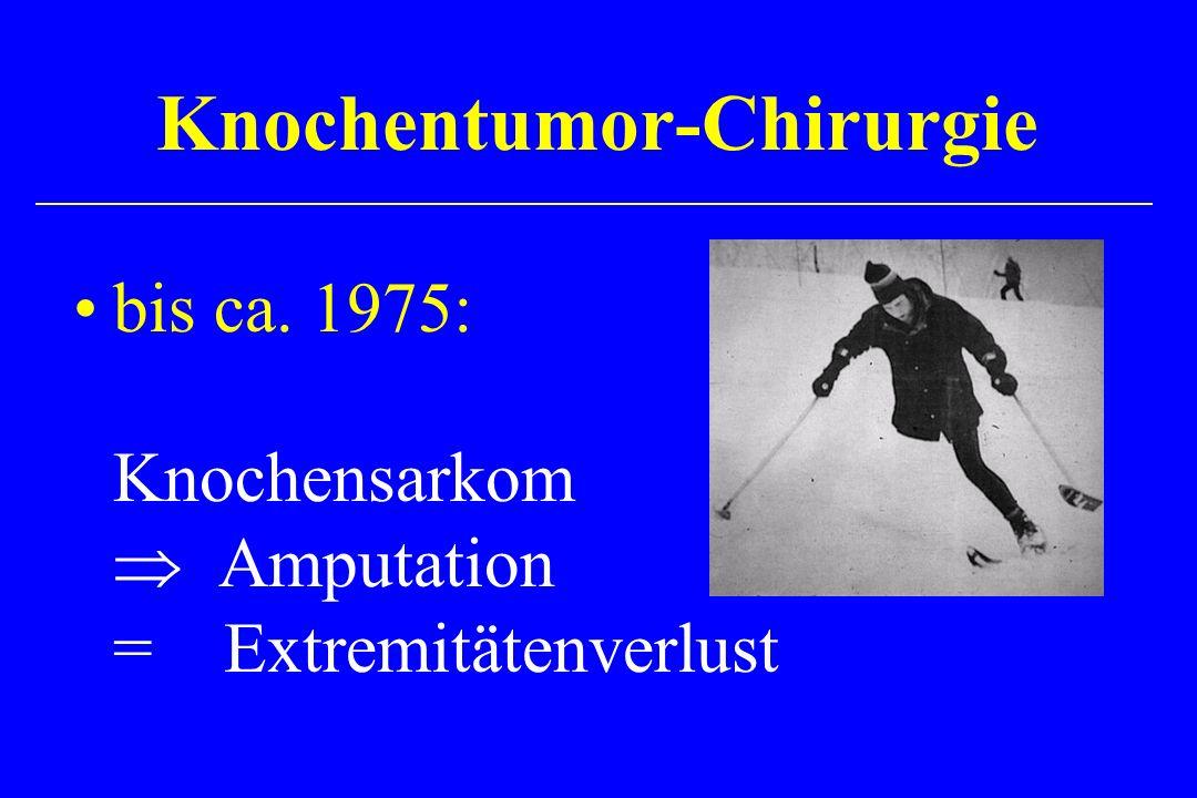 bis ca. 1975: Knochensarkom Amputation = Extremitätenverlust Knochentumor-Chirurgie
