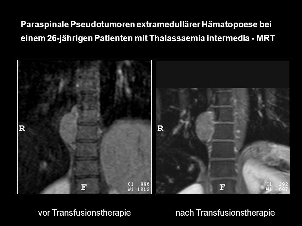 Paraspinale Pseudotumoren extramedullärer Hämatopoese bei einem 26-jährigen Patienten mit Thalassaemia intermedia - MRT vor Transfusionstherapienach T