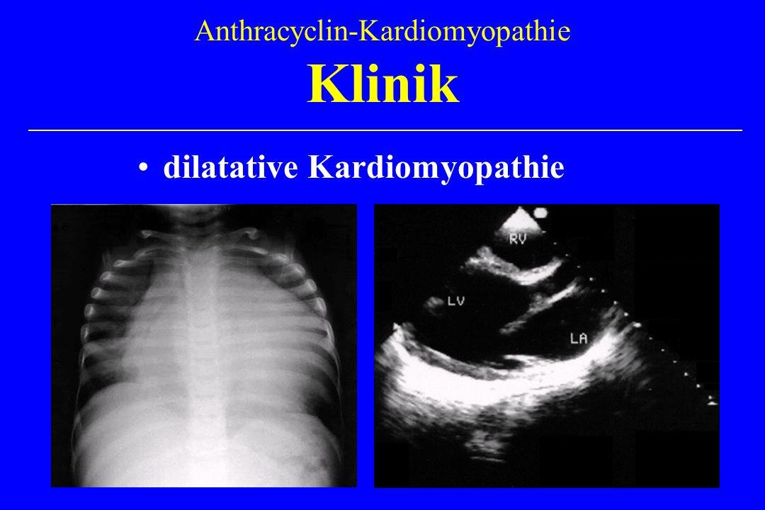dilatative Kardiomyopathie Anthracyclin-Kardiomyopathie Klinik