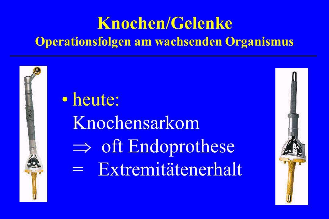 heute: Knochensarkom oft Endoprothese = Extremitätenerhalt Knochen/Gelenke Operationsfolgen am wachsenden Organismus