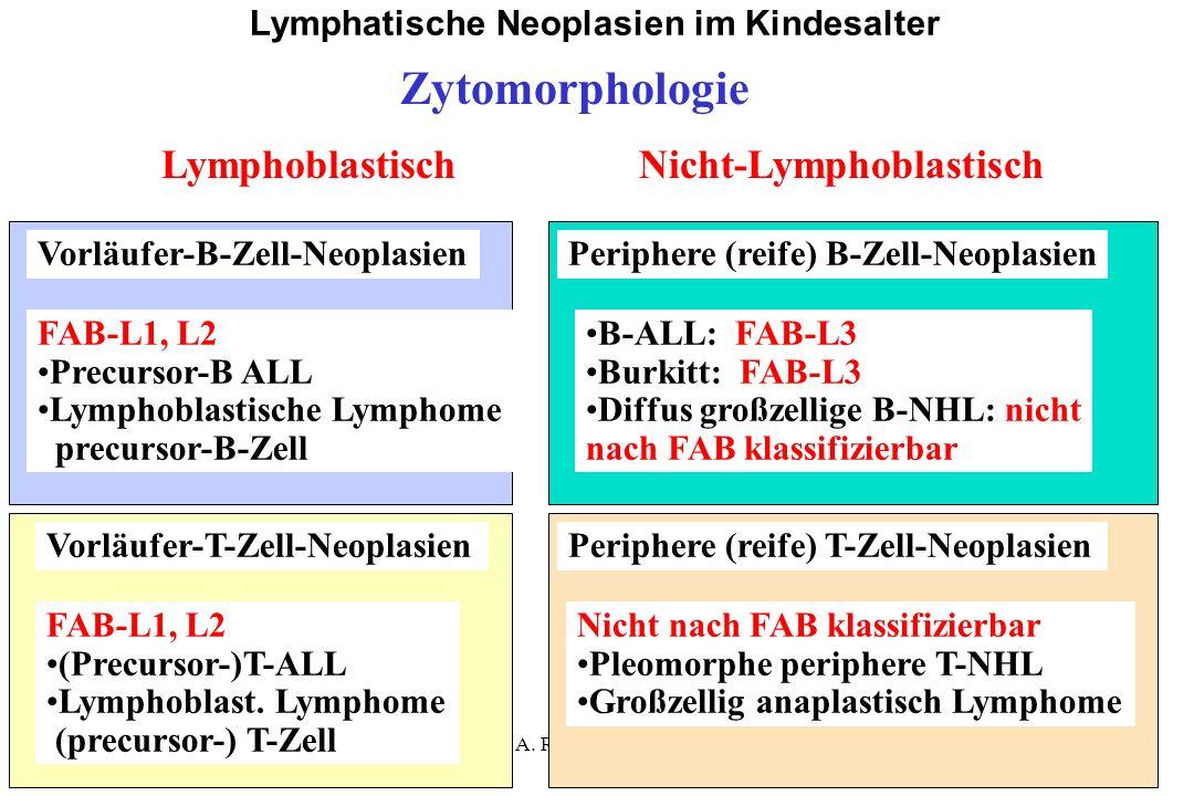 A. Reiter Juni 2004 Lymphatische Neoplasien im Kindesalter Vorläufer-B-Zell-NeoplasienPeriphere (reife) B-Zell-Neoplasien FAB-L1, L2 Precursor-B ALL L