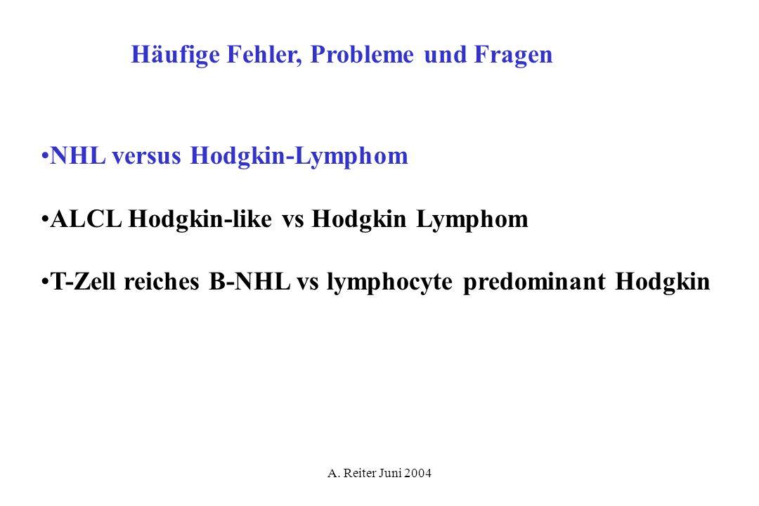 A. Reiter Juni 2004 Häufige Fehler, Probleme und Fragen NHL versus Hodgkin-Lymphom ALCL Hodgkin-like vs Hodgkin Lymphom T-Zell reiches B-NHL vs lympho