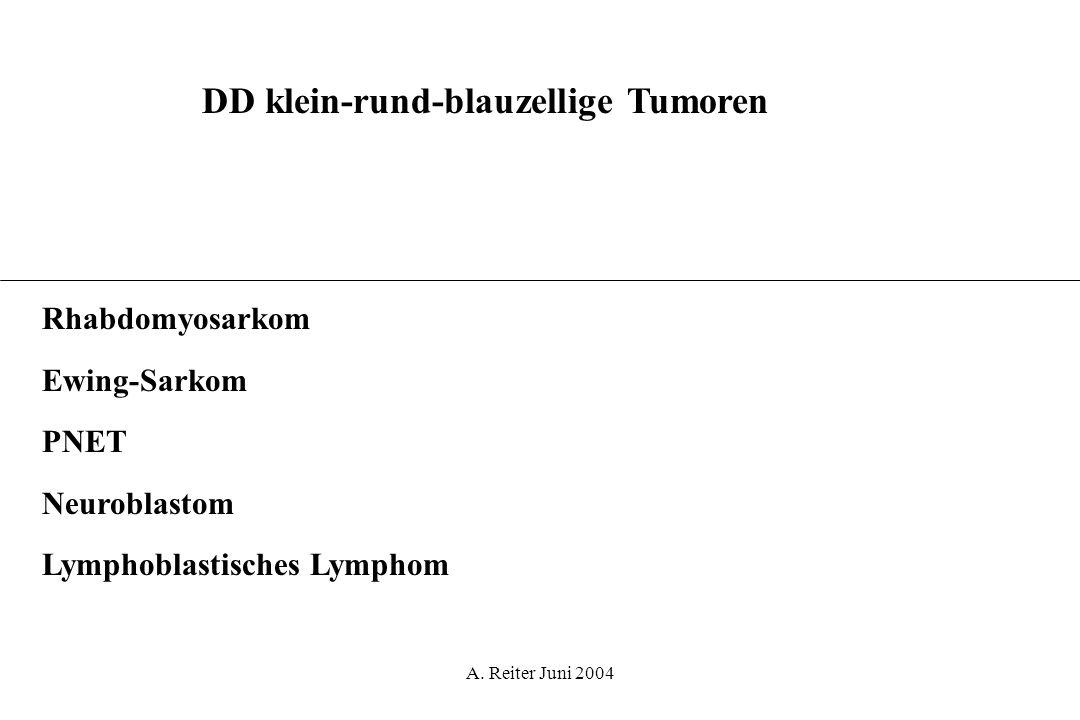 A. Reiter Juni 2004 DD klein-rund-blauzellige Tumoren Rhabdomyosarkom Ewing-Sarkom PNET Neuroblastom Lymphoblastisches Lymphom