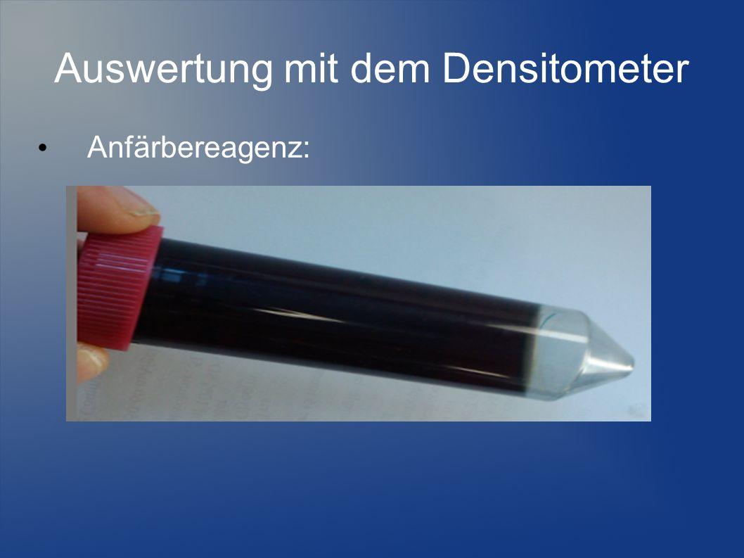 Auswertung mit dem Densitometer Anfärbereagenz: