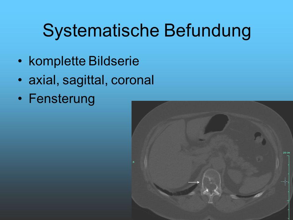 Systematische Befundung komplette Bildserie axial, sagittal, coronal Fensterung