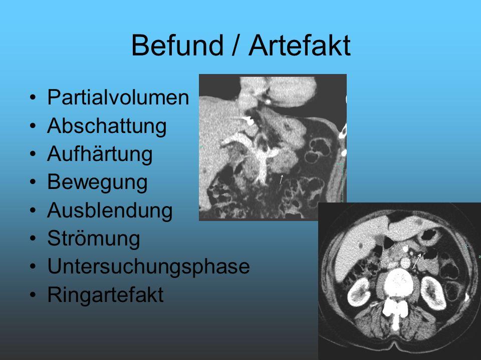 Befund / Artefakt Partialvolumen Abschattung Aufhärtung Bewegung Ausblendung Strömung Untersuchungsphase Ringartefakt