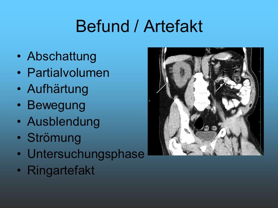 Befund / Artefakt Abschattung Partialvolumen Aufhärtung Bewegung Ausblendung Strömung Untersuchungsphase Ringartefakt