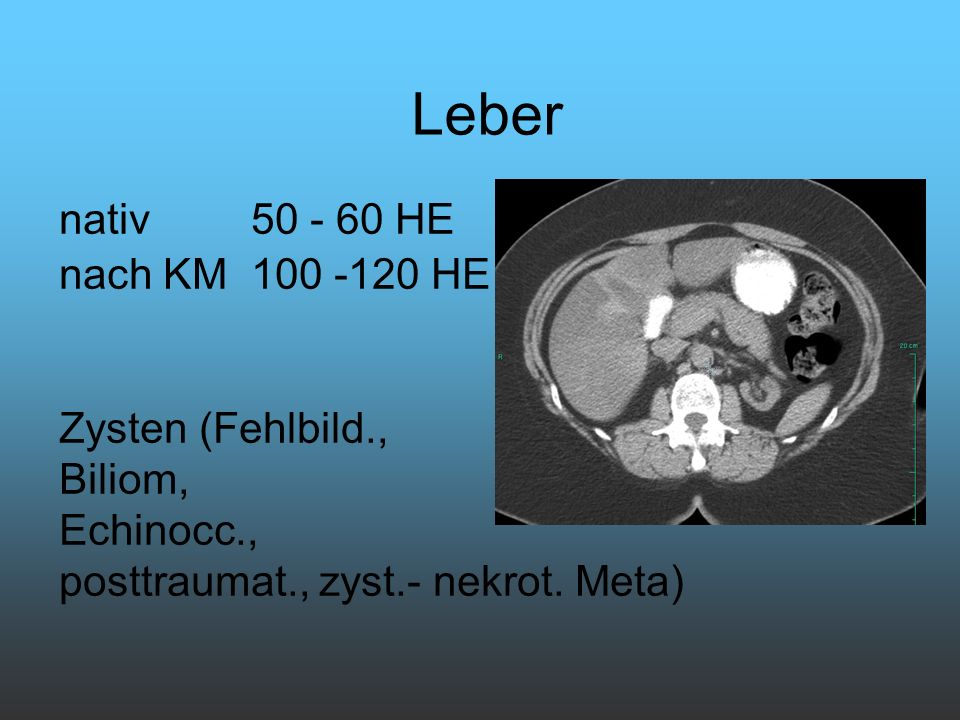 nativ 50 - 60 HE nach KM 100 -120 HE Zysten (Fehlbild., Biliom, Echinocc., posttraumat., zyst.- nekrot. Meta) Leber