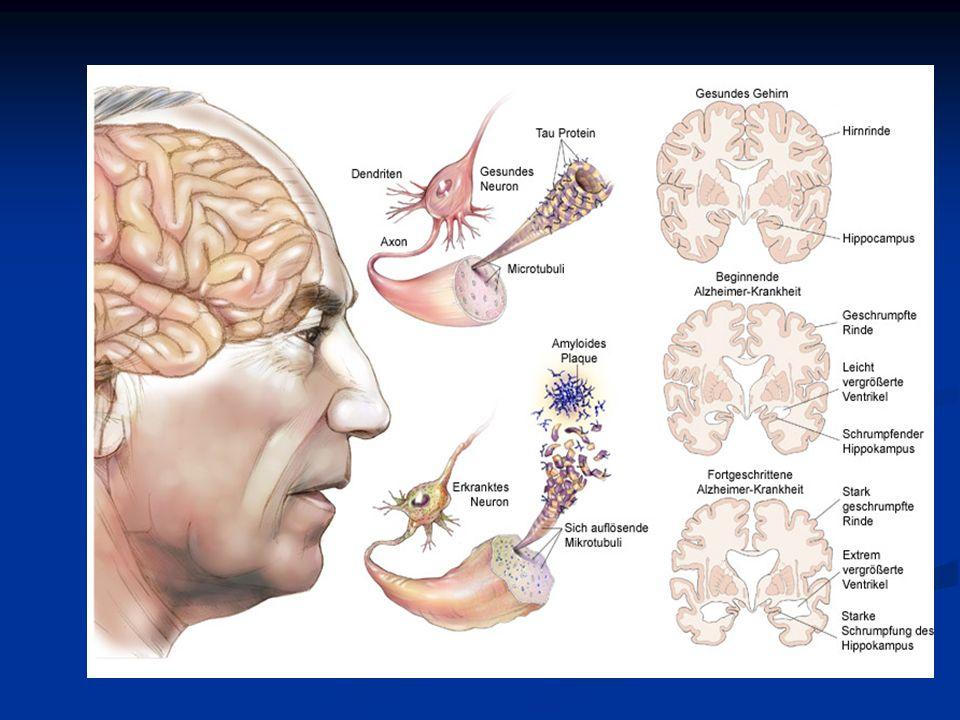 Frontotemporale Demenz Bei der Frontotemporalen Demenz (FTD) handelt es sich um ein Zerfall von Nervenzellen im frontalen zerebralen Kortex.