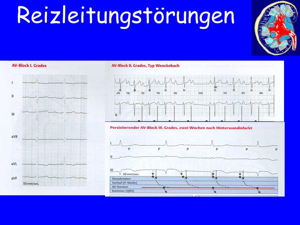 EKG-Bild AV-Block I-III° Reizleitungstörungen