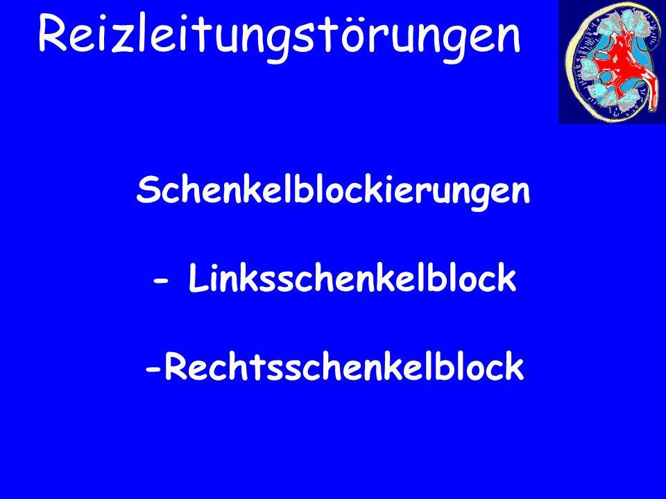 Schenkelblockierungen - Linksschenkelblock -Rechtsschenkelblock Reizleitungstörungen