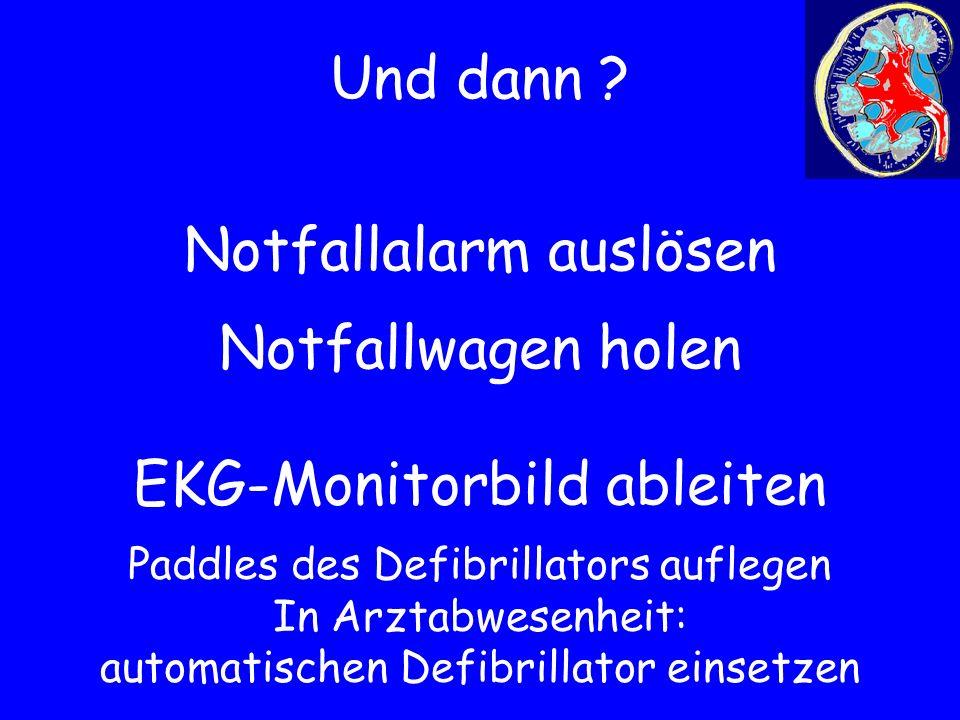 Und dann ? Notfallalarm auslösen Notfallwagen holen EKG-Monitorbild ableiten Paddles des Defibrillators auflegen In Arztabwesenheit: automatischen Def
