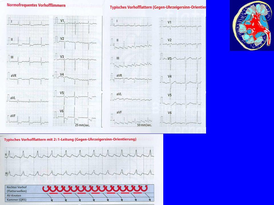 AV-Block: Leitungsverzögerung im AV-Knoten: - verlangsamt I° - mit Ausfällen II° - mit regelmäßigem Ausfall II° - komplette Blockierung III° Reizleitungstörungen