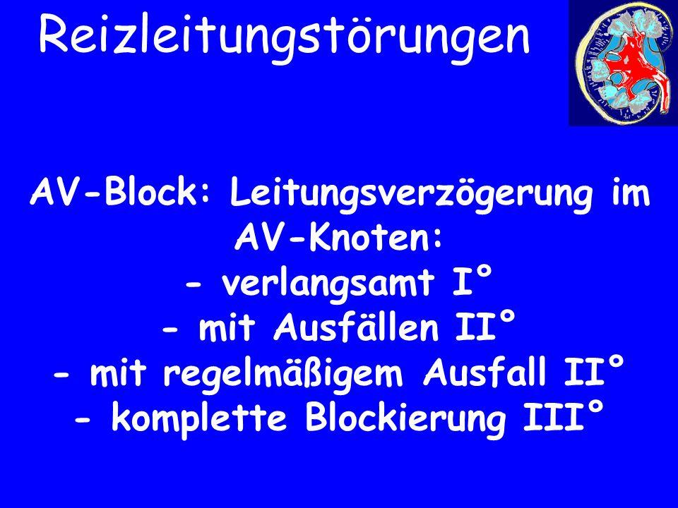AV-Block: Leitungsverzögerung im AV-Knoten: - verlangsamt I° - mit Ausfällen II° - mit regelmäßigem Ausfall II° - komplette Blockierung III° Reizleitu