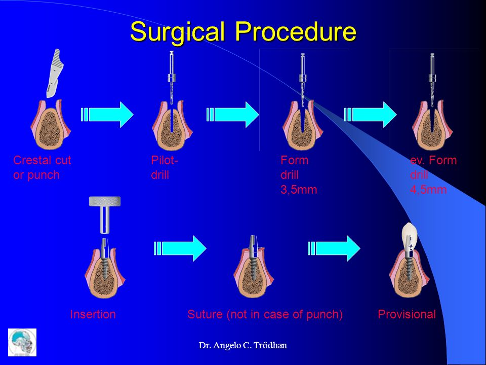 Surgical Procedure Crestal cut or punch Pilot- drill Form drill 3,5mm ev. Form drill 4,5mm Insertion Suture (not in case of punch)Provisional