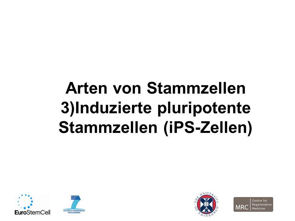 Arten von Stammzellen 3)Induzierte pluripotente Stammzellen (iPS-Zellen)