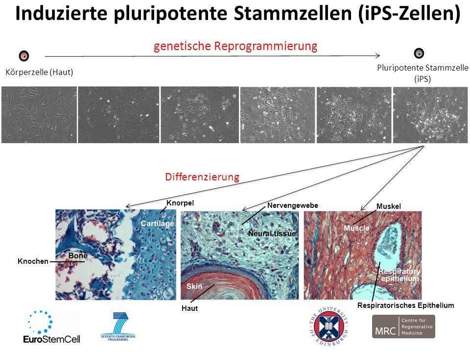 Induzierte pluripotente Stammzellen (iPS-Zellen) Körperzelle (Haut) genetische Reprogrammierung Pluripotente Stammzelle (iPS) Differenzierung Knochen