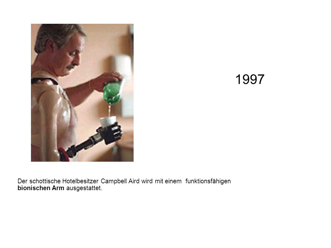1997 Der schottische Hotelbesitzer Campbell Aird wird mit einem funktionsfähigen bionischen Arm ausgestattet.