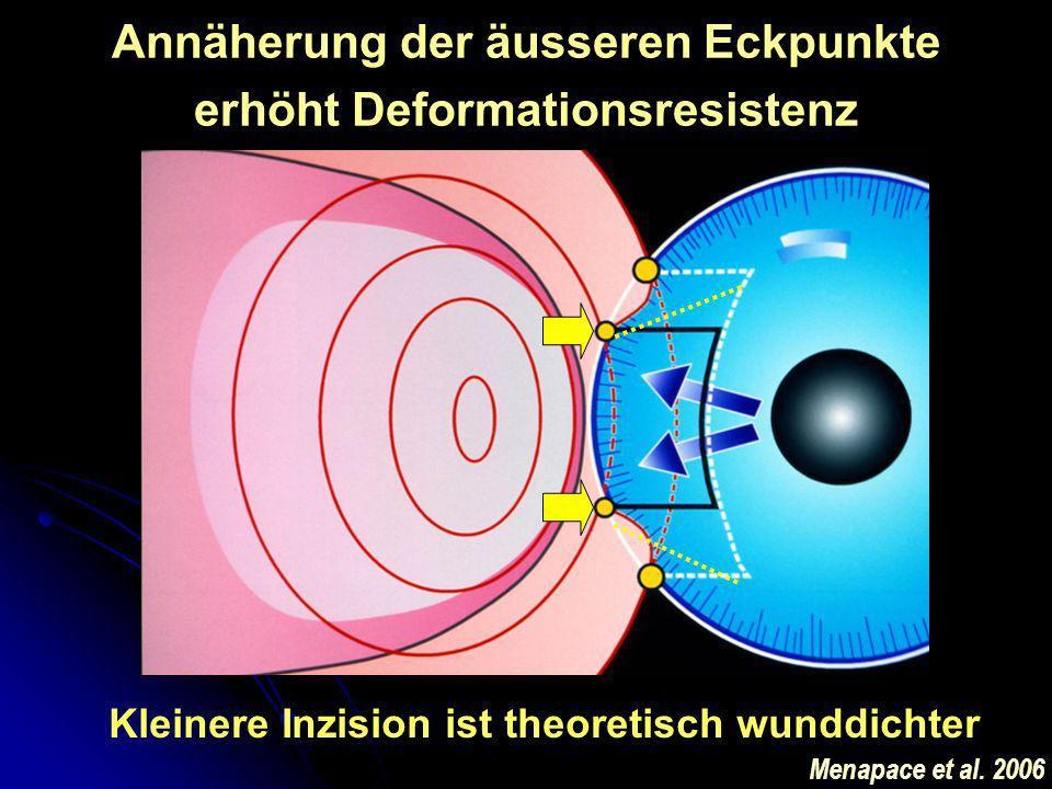 Annäherung der äusseren Eckpunkte erhöht Deformationsresistenz Kleinere Inzision ist theoretisch wunddichter Menapace et al. 2006