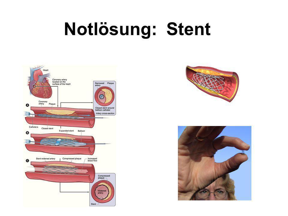 Notlösung: Stent