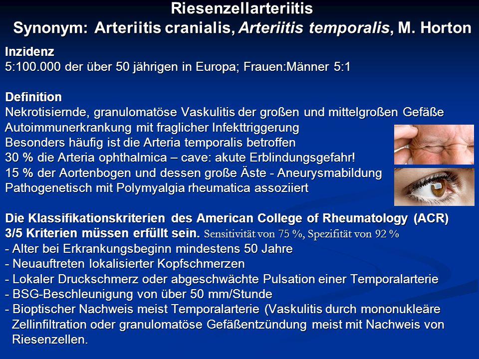 Riesenzellarteriitis Synonym: Arteriitis cranialis, Arteriitis temporalis, M. Horton Inzidenz 5:100.000 der über 50 jährigen in Europa; Frauen:Männer