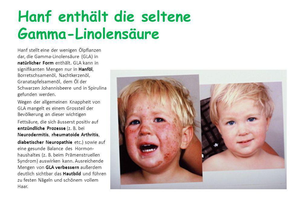Hanf enthält die seltene Gamma-Linolensäure Hanf stellt eine der wenigen Ölpflanzen dar, die Gamma-Linolensäure (GLA) in natürlicher Form enthält.