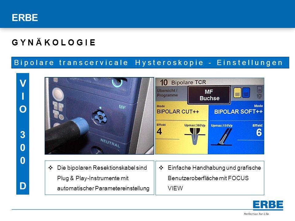 Titelmasterformat durch Klicken bearbeiten  Einfache Handhabung und grafische Benutzeroberfläche mit FOCUS VIEW ERBE B i p o l a r e t r a n s c e r