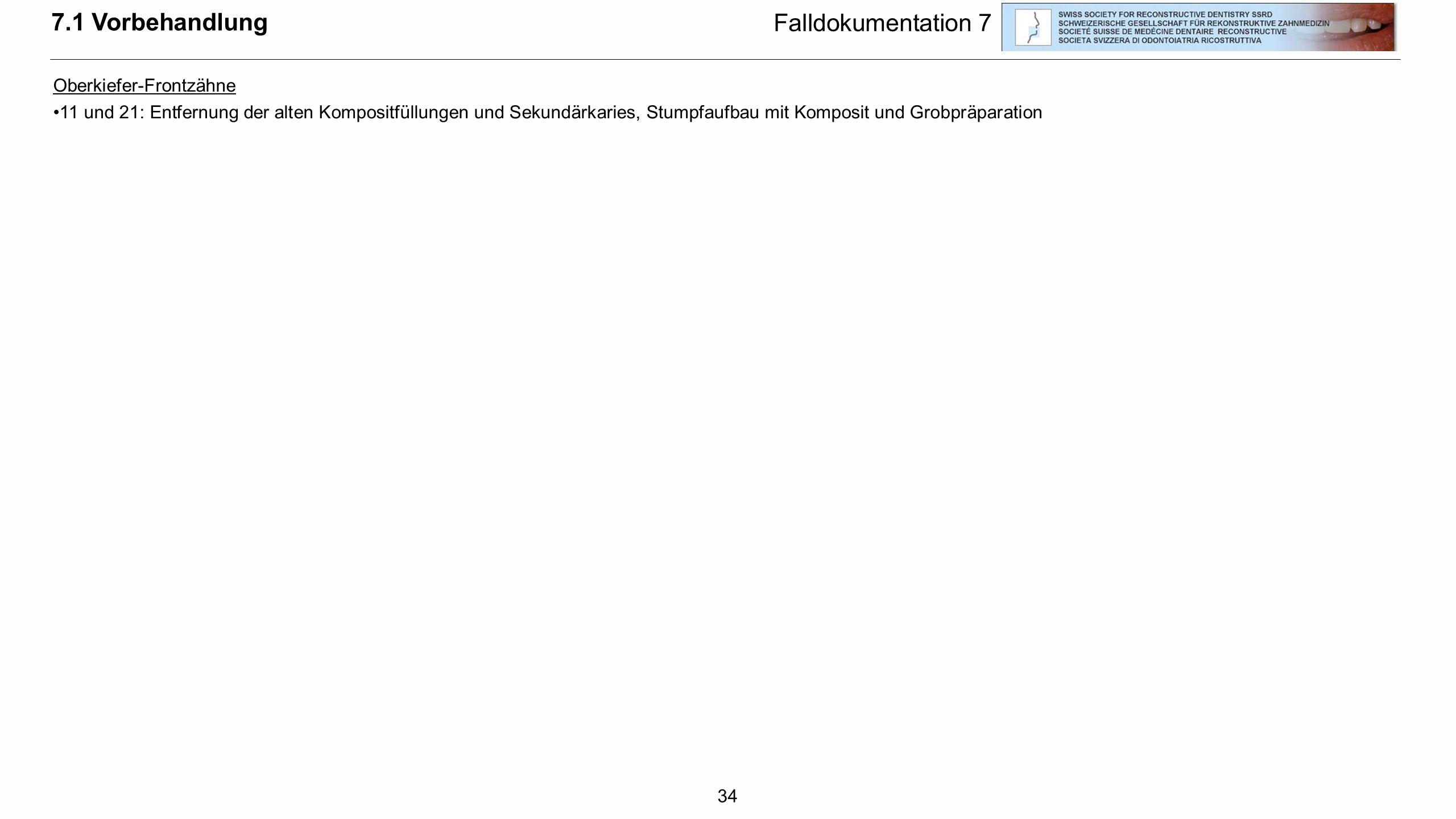 34 7.1 Vorbehandlung Falldokumentation 7 Oberkiefer-Frontzähne 11 und 21: Entfernung der alten Kompositfüllungen und Sekundärkaries, Stumpfaufbau mit