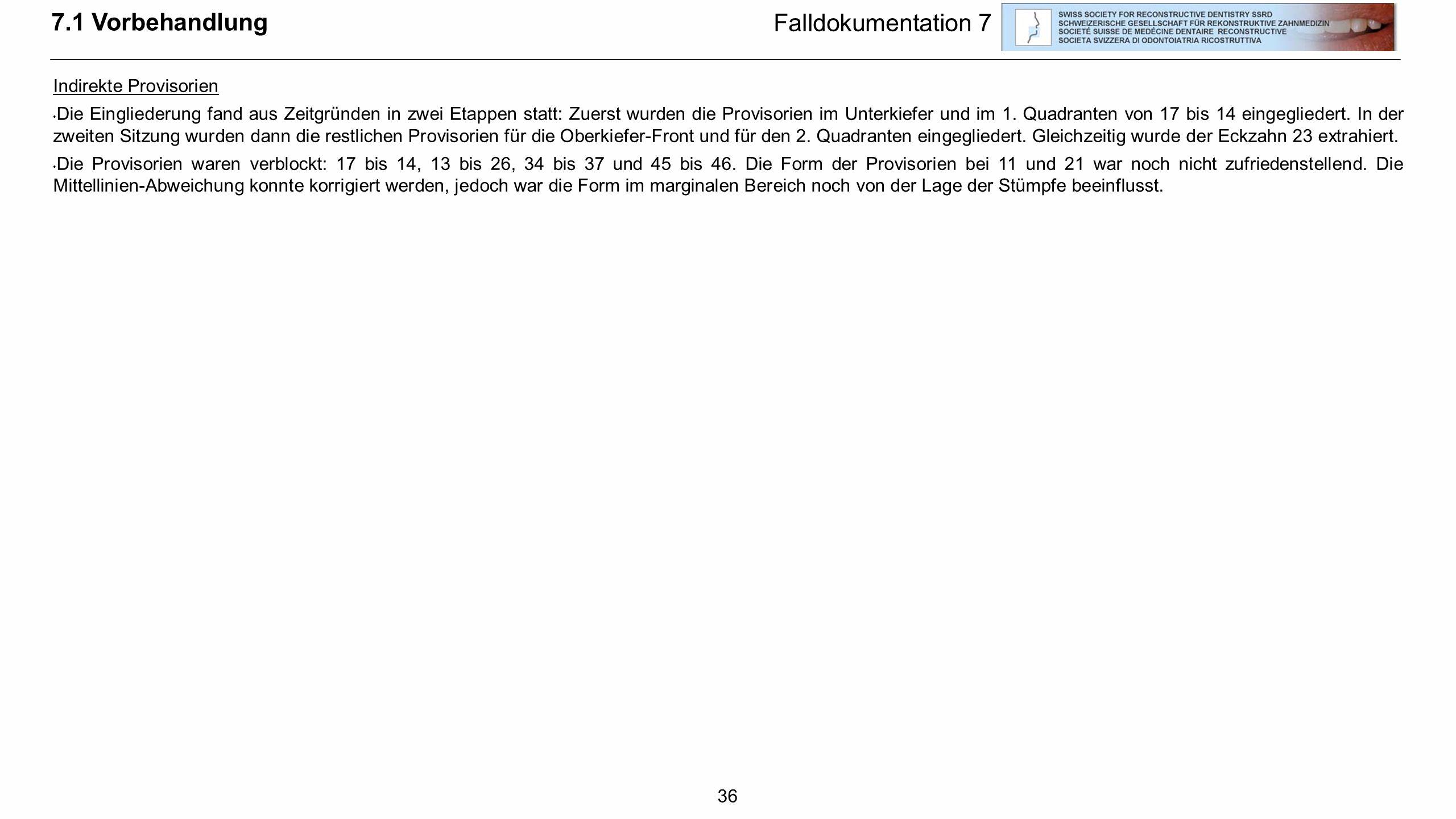 36 7.1 Vorbehandlung Falldokumentation 7 Indirekte Provisorien Die Eingliederung fand aus Zeitgründen in zwei Etappen statt: Zuerst wurden die Proviso