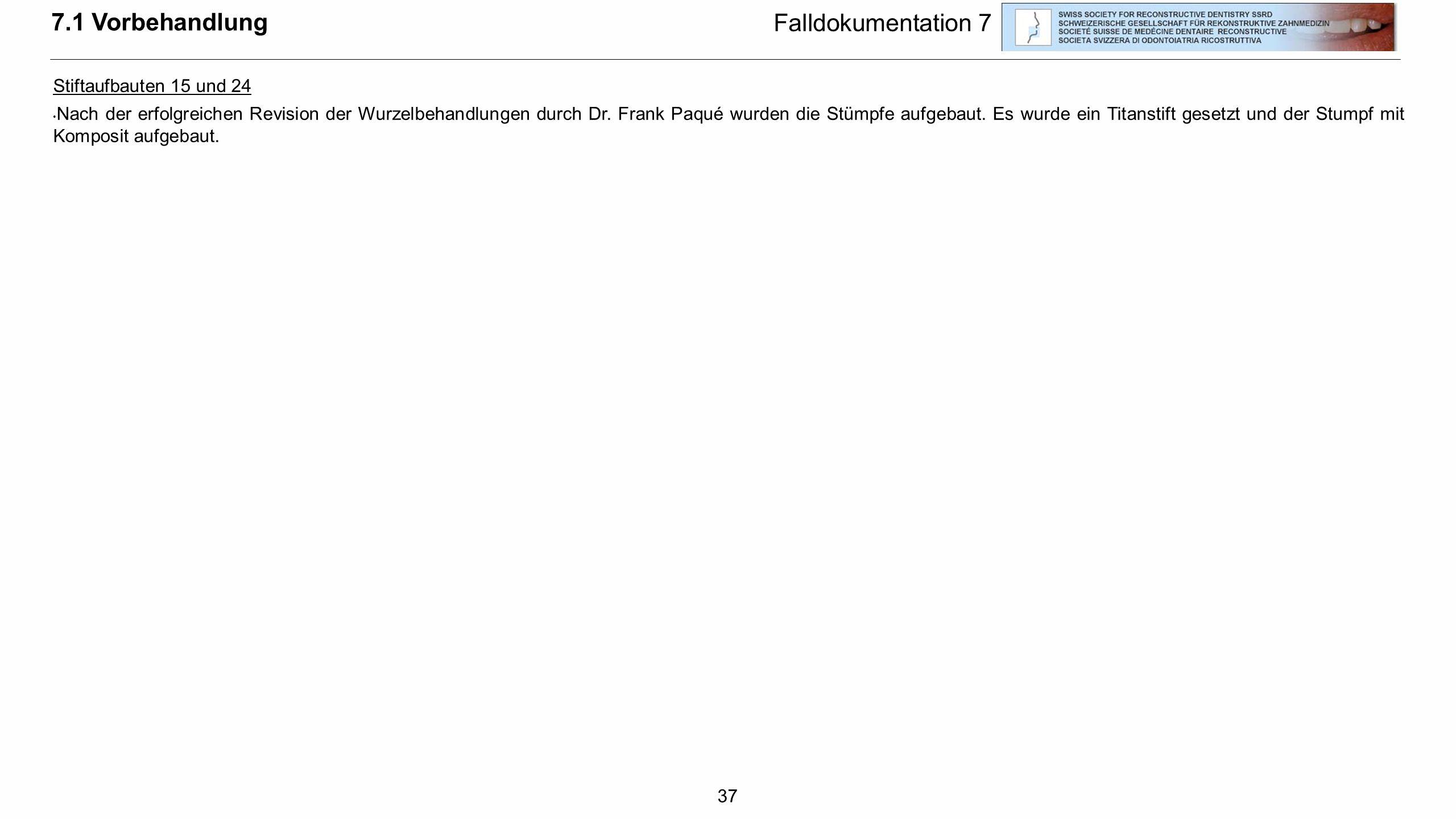 37 7.1 Vorbehandlung Falldokumentation 7 Stiftaufbauten 15 und 24 Nach der erfolgreichen Revision der Wurzelbehandlungen durch Dr. Frank Paqué wurden