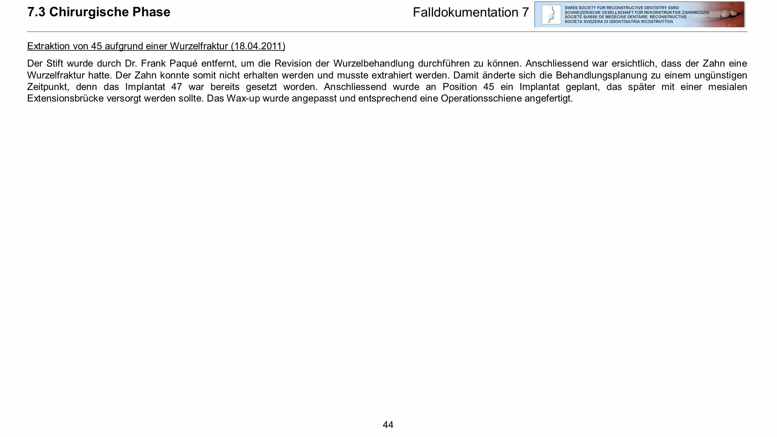 44 7.3 Chirurgische Phase Falldokumentation 7 Extraktion von 45 aufgrund einer Wurzelfraktur (18.04.2011) Der Stift wurde durch Dr. Frank Paqué entfer