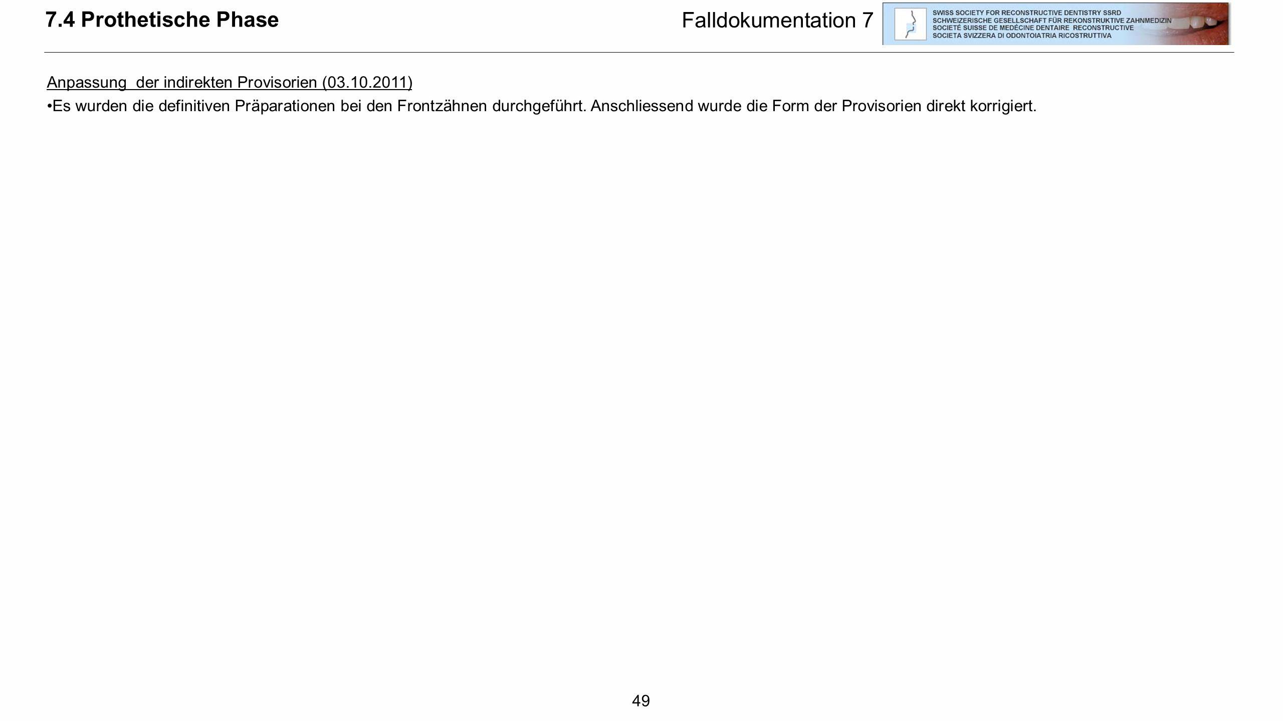49 7.4 Prothetische Phase Falldokumentation 7 Anpassung der indirekten Provisorien (03.10.2011) Es wurden die definitiven Präparationen bei den Frontz