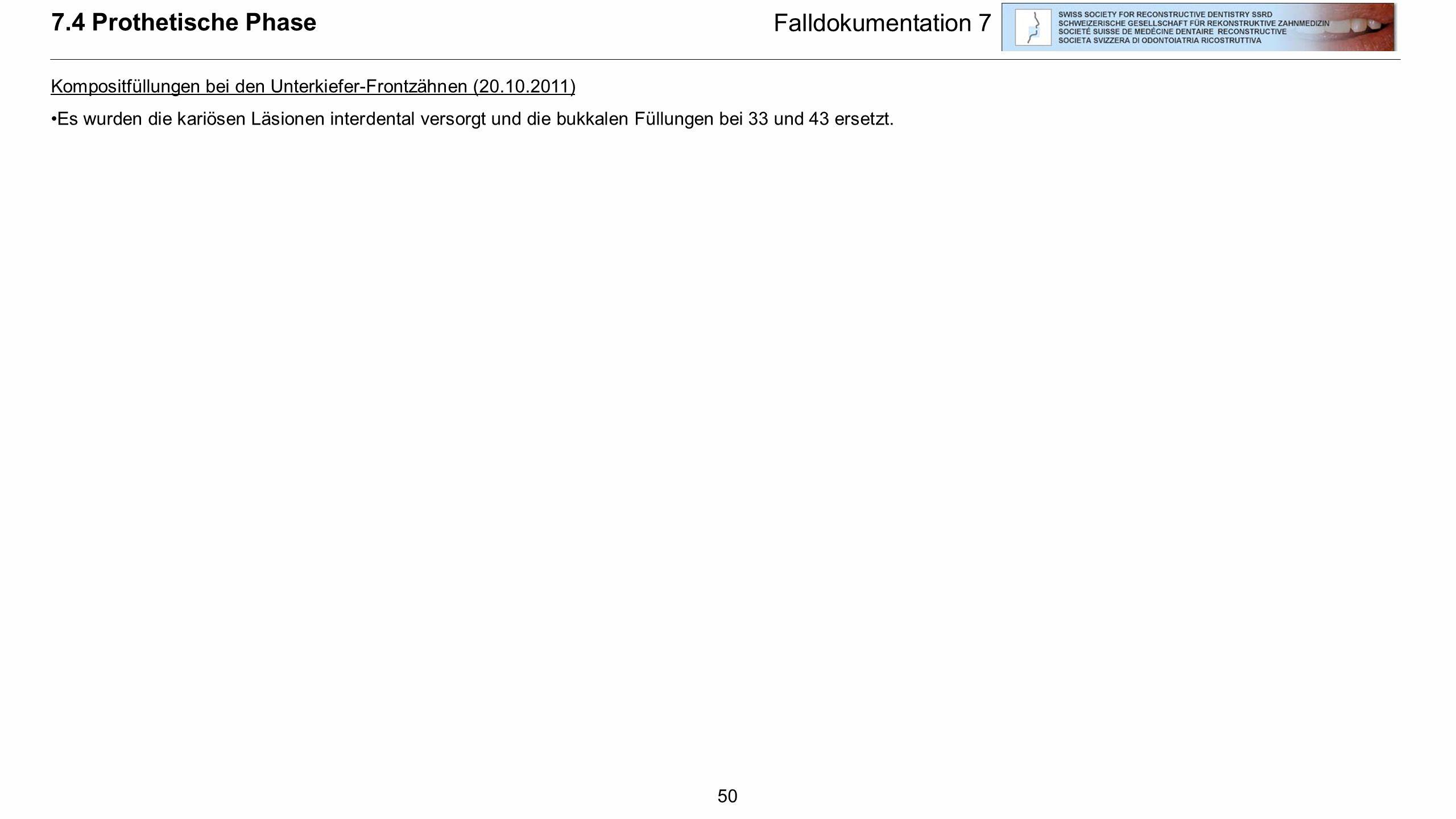 50 Falldokumentation 7 7.4 Prothetische Phase Kompositfüllungen bei den Unterkiefer-Frontzähnen (20.10.2011) Es wurden die kariösen Läsionen interdent