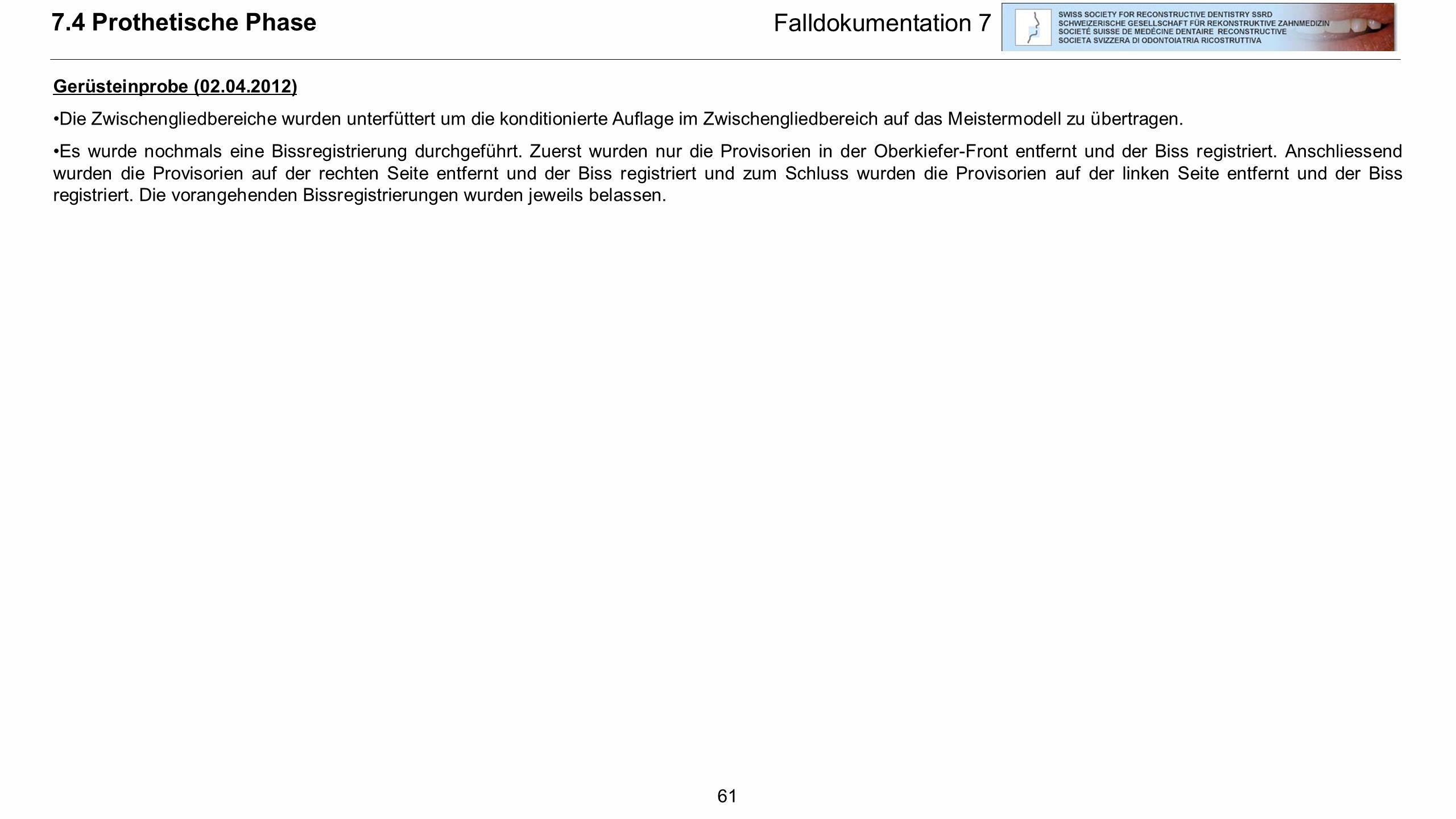 61 Falldokumentation 7 Gerüsteinprobe (02.04.2012) Die Zwischengliedbereiche wurden unterfüttert um die konditionierte Auflage im Zwischengliedbereich