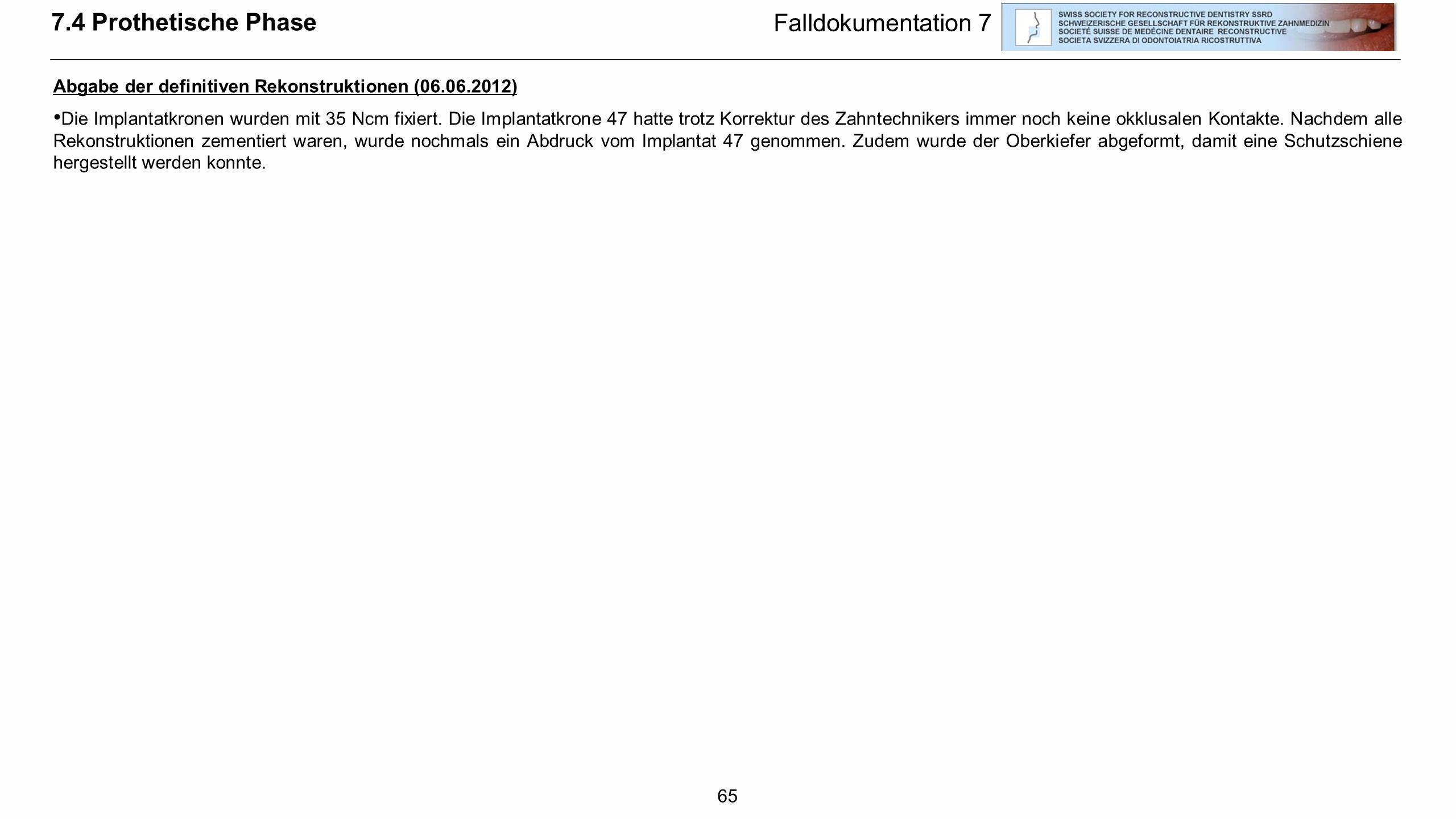65 Falldokumentation 7 Abgabe der definitiven Rekonstruktionen (06.06.2012) Die Implantatkronen wurden mit 35 Ncm fixiert. Die Implantatkrone 47 hatte