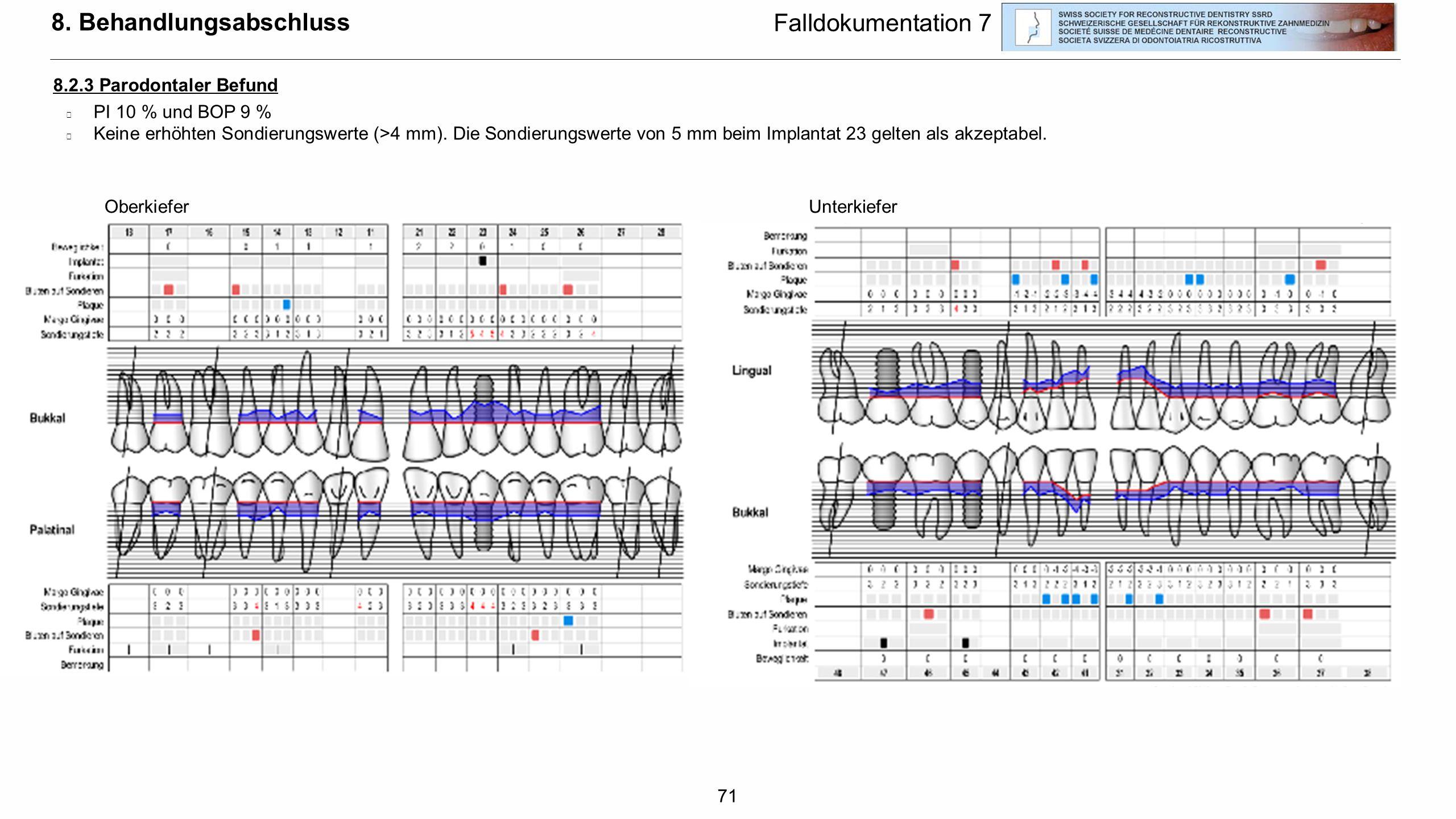 71 8. Behandlungsabschluss 8.2.3 Parodontaler Befund  PI 10 % und BOP 9 %  Keine erhöhten Sondierungswerte (>4 mm). Die Sondierungswerte von 5 mm be