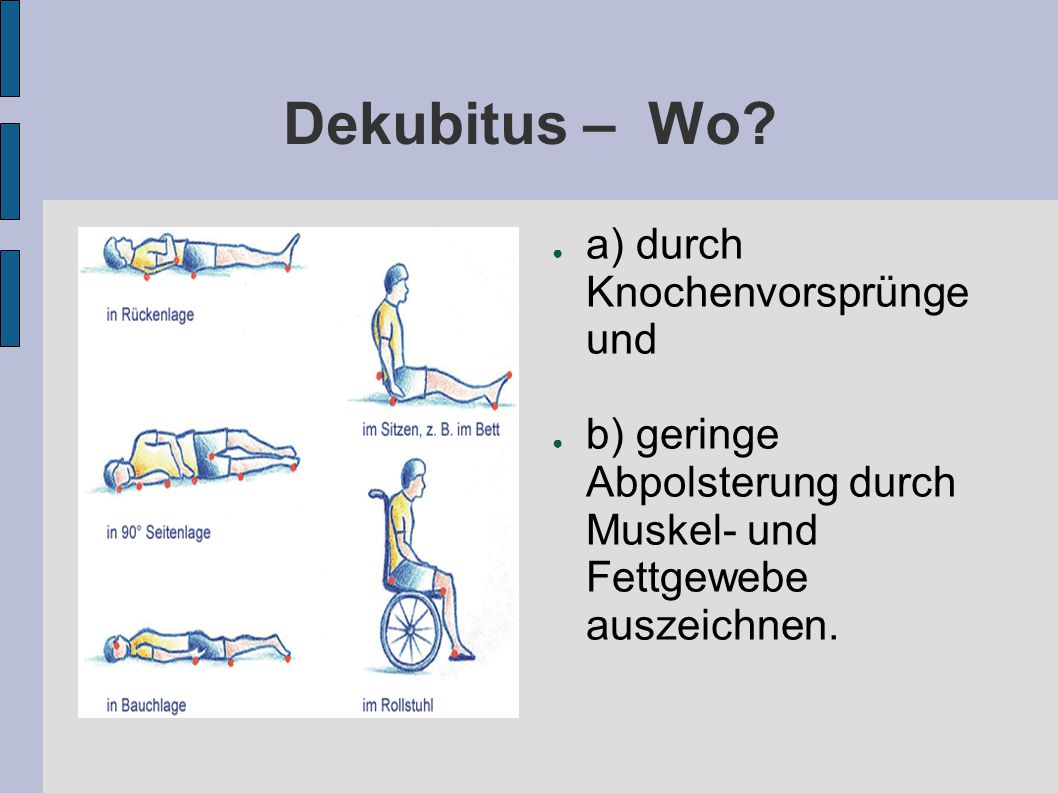 Dekubitus – Wo.