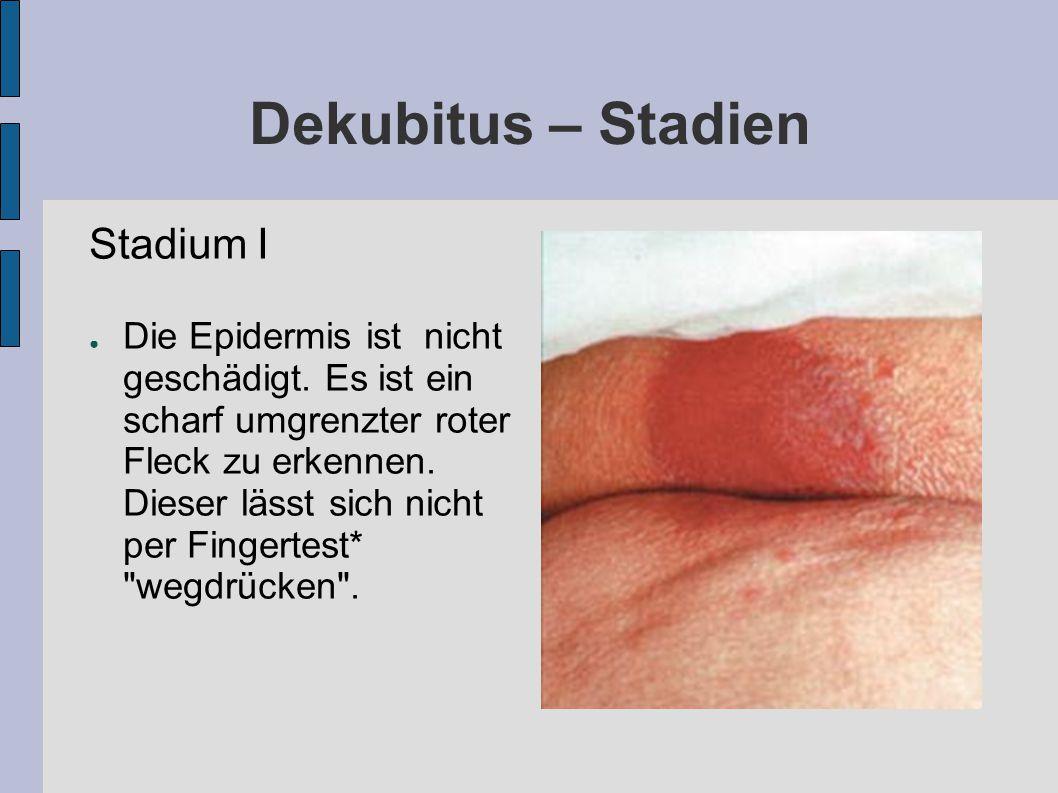 Dekubitus – Stadien Stadium I ● Die Epidermis ist nicht geschädigt.