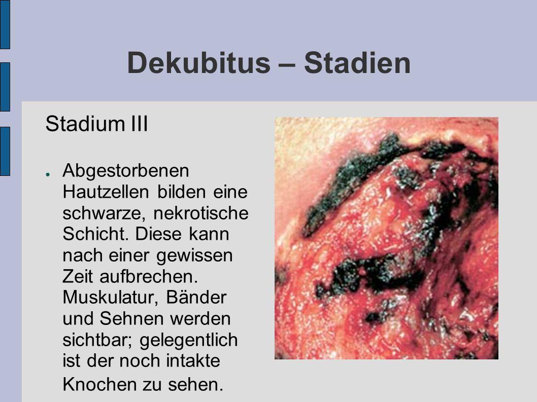Dekubitus – Stadien Stadium III ● Abgestorbenen Hautzellen bilden eine schwarze, nekrotische Schicht. Diese kann nach einer gewissen Zeit aufbrechen.
