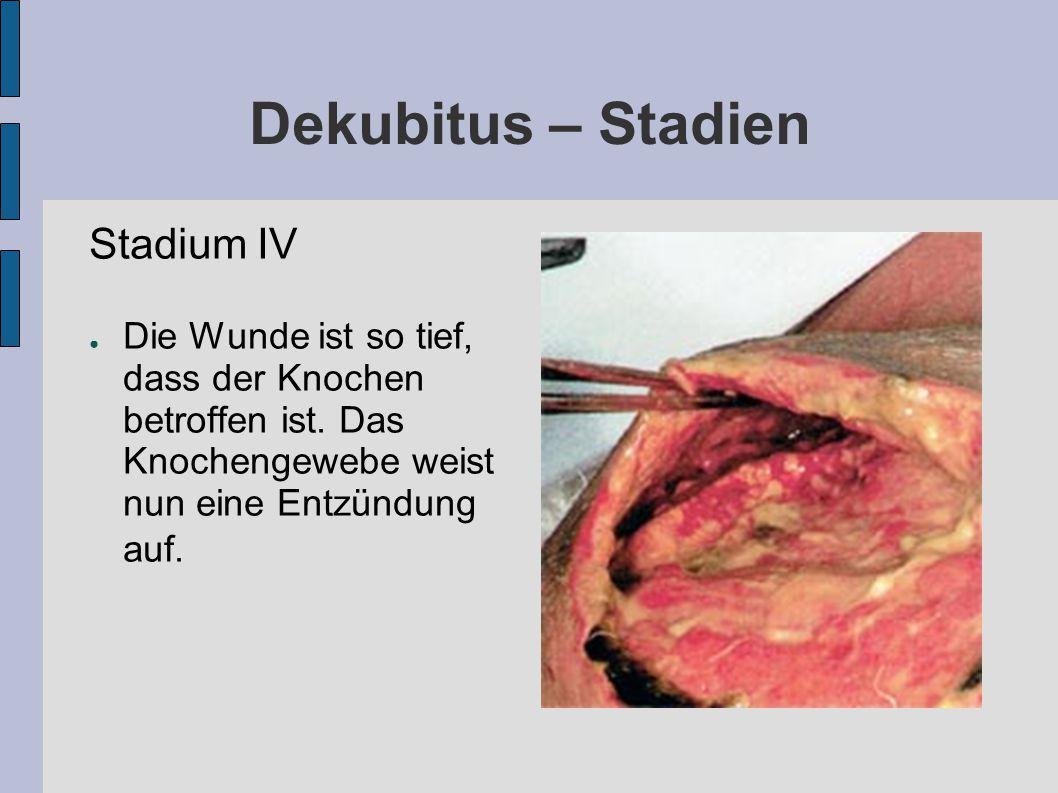 Dekubitus – Stadien Stadium IV ● Die Wunde ist so tief, dass der Knochen betroffen ist.