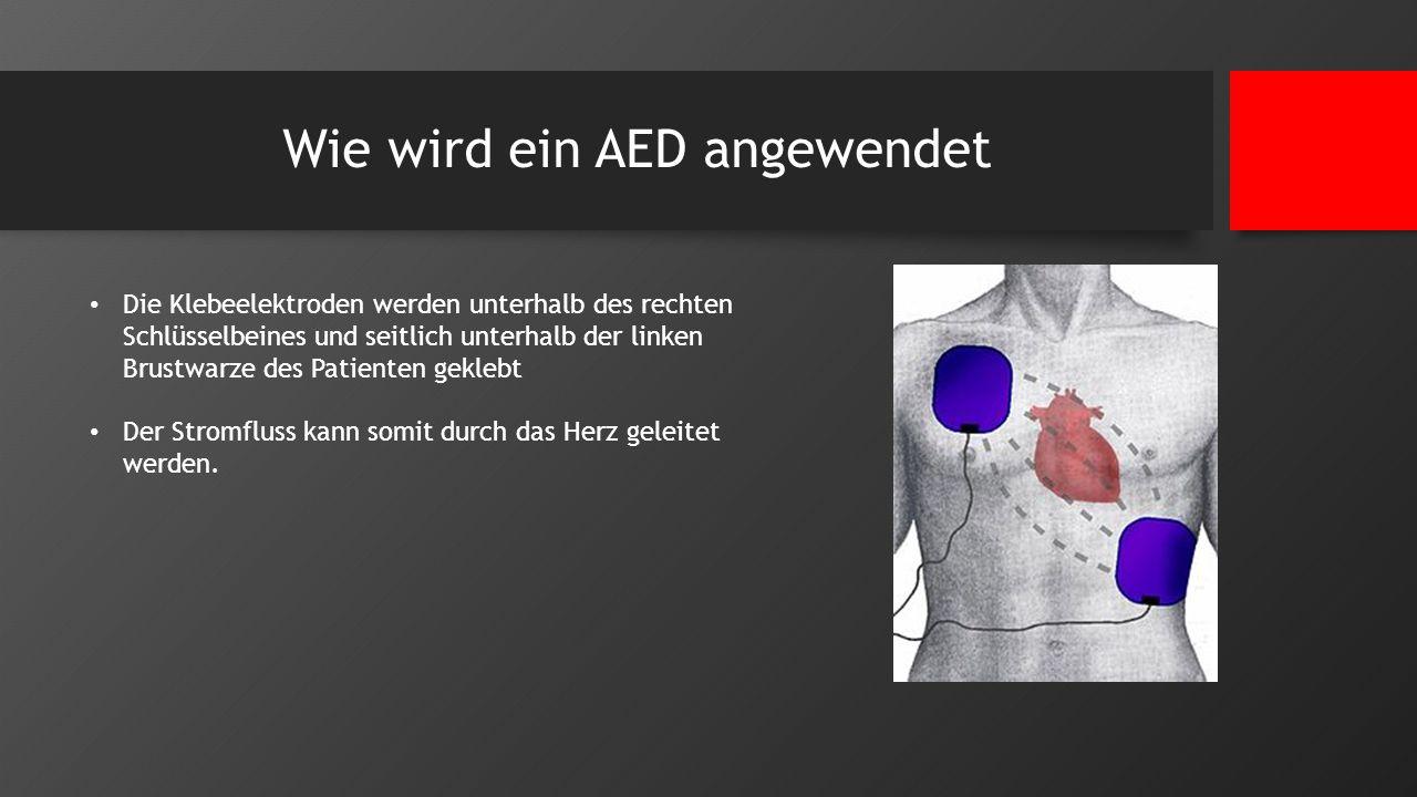 Wie wird ein AED angewendet Die Klebeelektroden werden unterhalb des rechten Schlüsselbeines und seitlich unterhalb der linken Brustwarze des Patiente