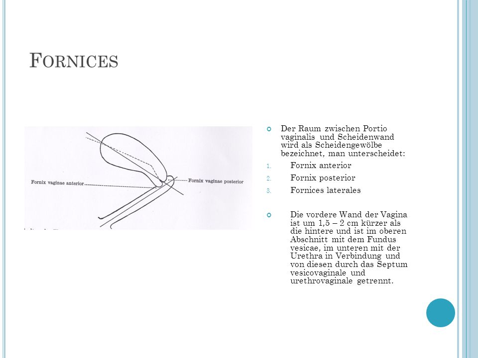 F ORNICES Der Raum zwischen Portio vaginalis und Scheidenwand wird als Scheidengewölbe bezeichnet, man unterscheidet: 1. Fornix anterior 2. Fornix pos