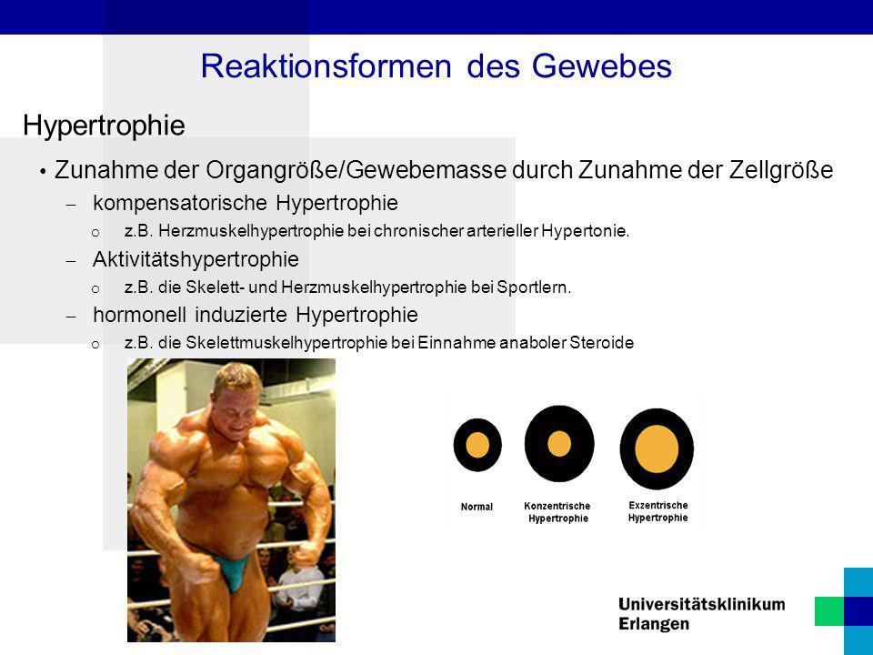 Hypertrophie Zunahme der Organgröße/Gewebemasse durch Zunahme der Zellgröße  kompensatorische Hypertrophie o z.B. Herzmuskelhypertrophie bei chronisc