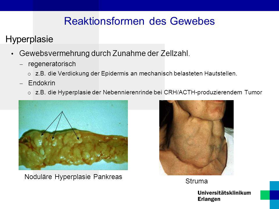Hyperplasie Gewebsvermehrung durch Zunahme der Zellzahl.  regeneratorisch o z.B. die Verdickung der Epidermis an mechanisch belasteten Hautstellen. 